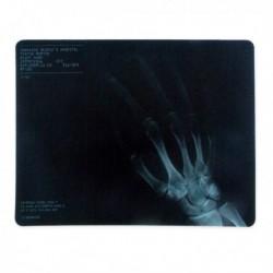 Tapis de souris radiographie de la main